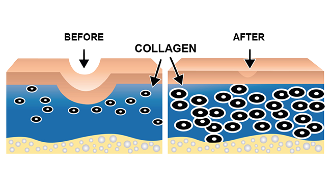 Derma Roller Before and After
