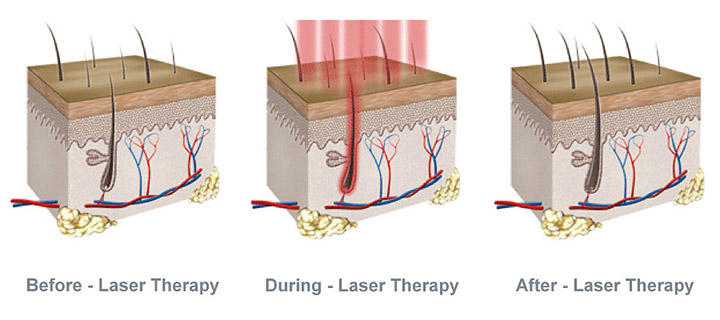 Low Level Laser Therapy Results